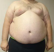 Fett-Killer - Diät Tipps, diaet test - schnelle Diäten