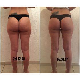 cellulite, Cellulite wegbekommen