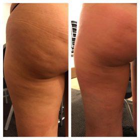 Cellulite bekämpfen, Cellulite am Po