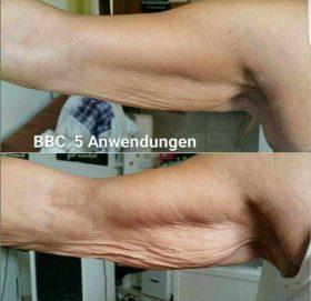 Cellulite bekämpfen, Cellulite am Arm