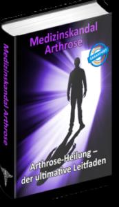 Arthrose heilen, medizinskandal arthrose